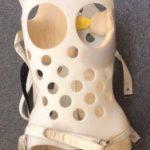 nbsp  シュロスベストプラクティスジャパン   最新の側弯症のシュロス式運動療法と装具をドイツから