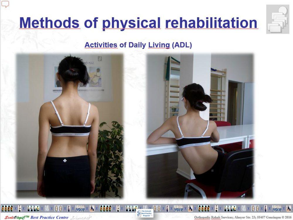 運動療法 シュロスベストプラクティス ( …詳細を見る)