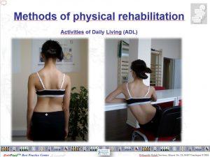 運動療法シュロスベストプラクティスnbsp| シュロスベストプラクティスジャパン | 最新の側弯症のシュロス式運動療法と装具をドイツから