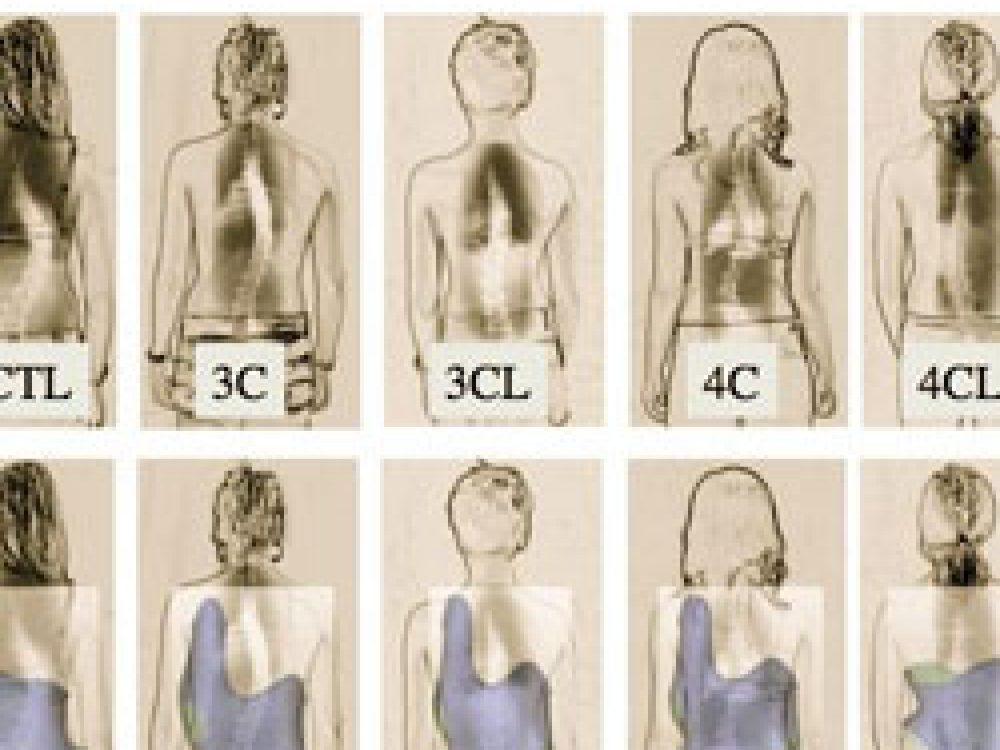 シュロス法による側弯症の分類 ( …詳細を見る)
