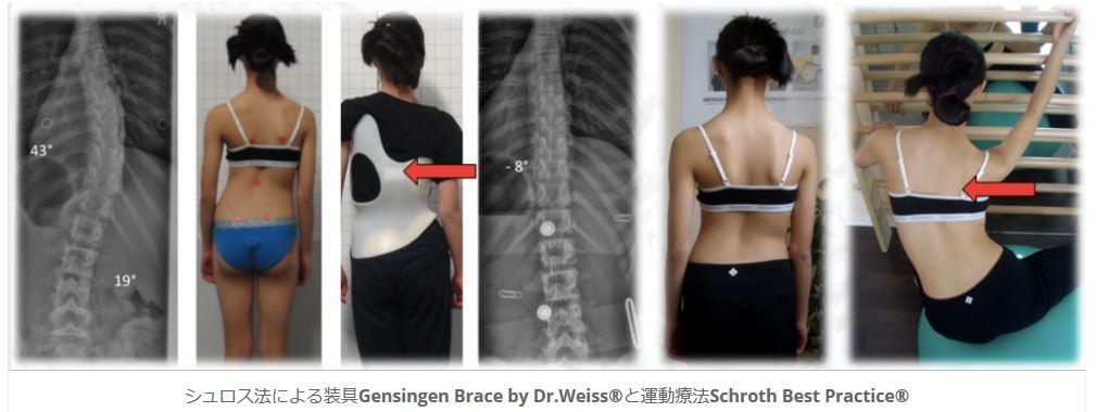シュロス法による装具と運動療法nbsp| シュロスベストプラクティスジャパン | 最新の側弯症のシュロス式運動療法と装具をドイツから